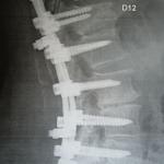 Arthrodèse vertébrale D11-L5