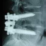 Arthrodèse vertébrale L4-L5