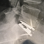 Prothèse discale L5-S1