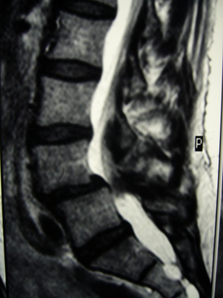 IRM préop